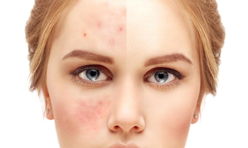 Acne is an inflammatory disease