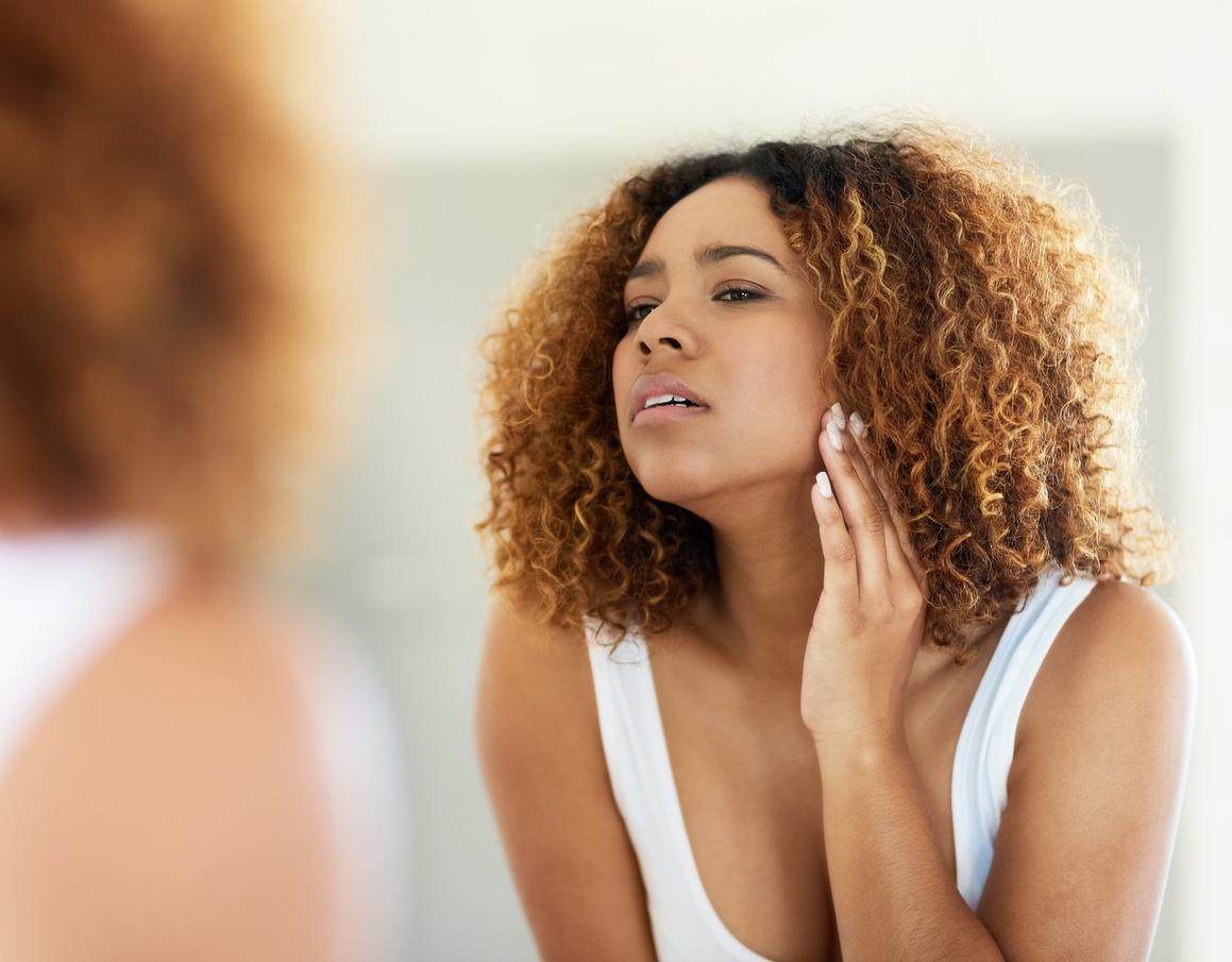 SA women's most troublesome skin condition